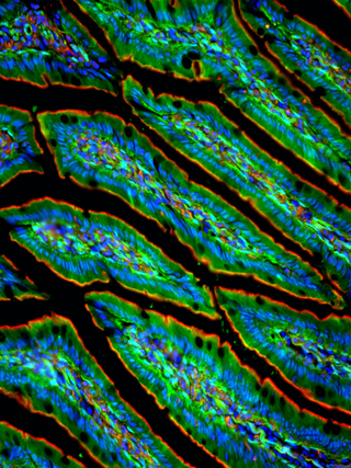 Mouse Ileum. Green, red, blue.
