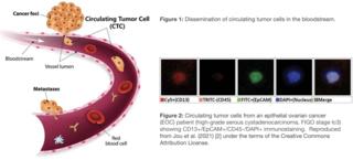 Circulating tumor cell