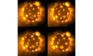 Four images of a giant lipid vesicle – a shell of lipid membrane about 20 microns in diameter –phase-separated into cholesterol-rich (dark) and cholesterol-poor (light) domains. Captured with SOLA SM.
